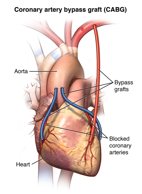 Front view of heart with artery and vein bypass grafts.