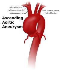 aneurysmascending_0
