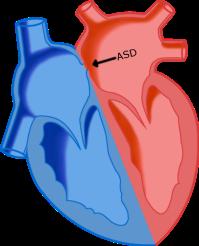 ASDheart