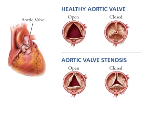 aortic-valve-stenosis